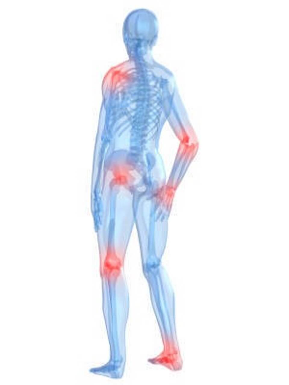 What Exactly Is Quot Bursitis Quot Renew Physical Therapy