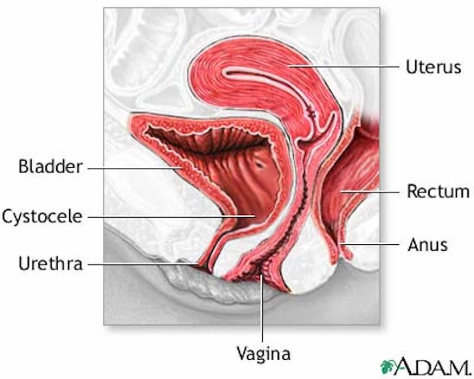 Pelvic Organ Prolapse Tell Me More Renew Physical Therapy