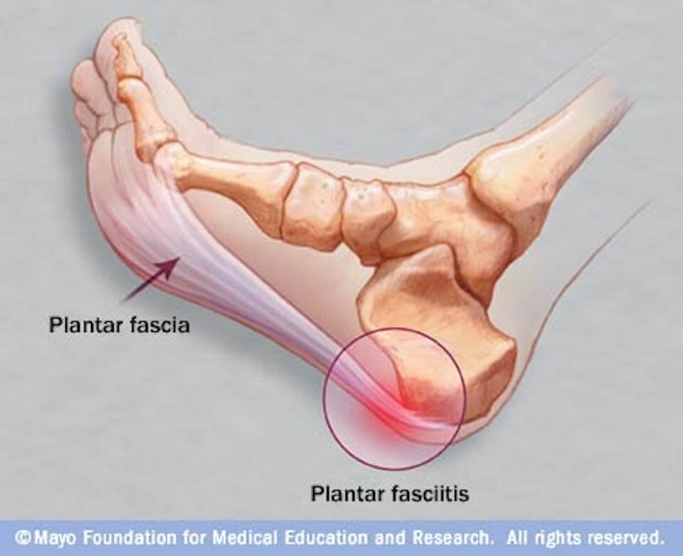 Free Your Feet From Plantar Fasciitis Renew Physical Therapy