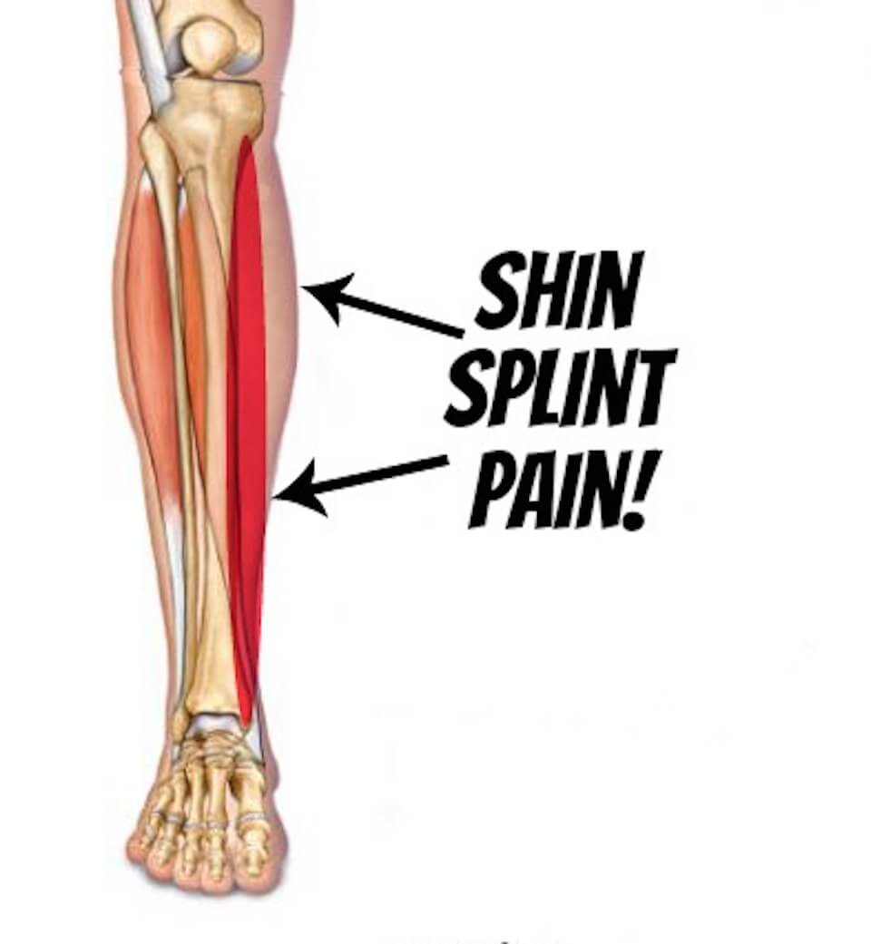 "Shin Busters! What Are ""Shin Splints"" And How You Can Fix"